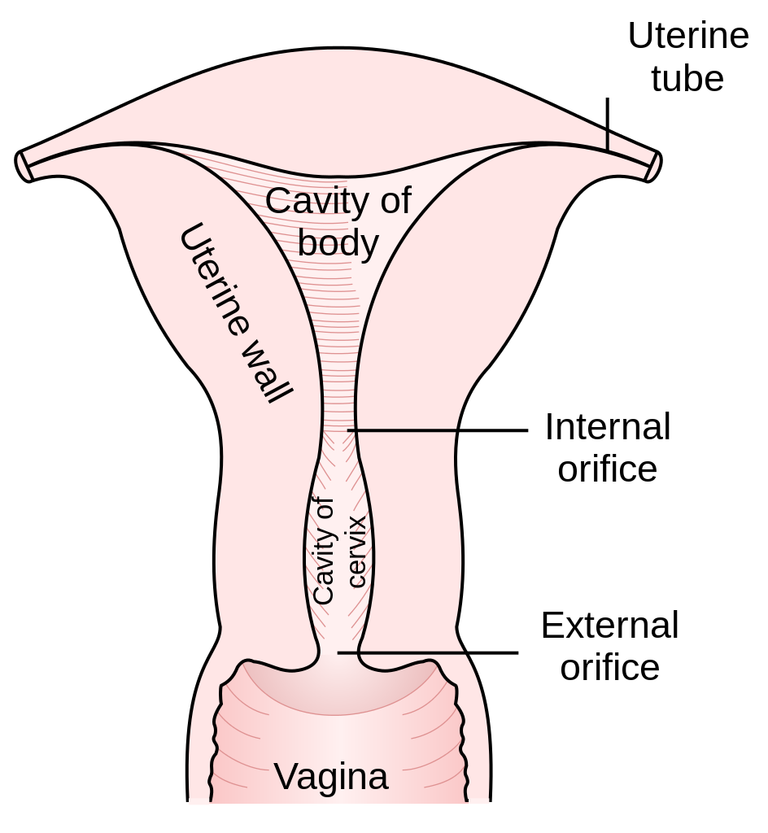 cervix incompetence